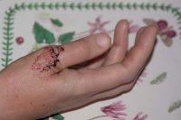 Lori's stitches